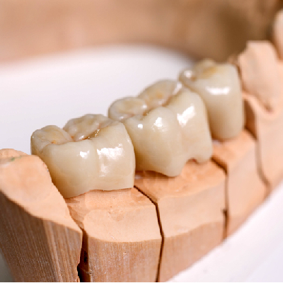 Dental-Bridges-Dental-care-south (1)